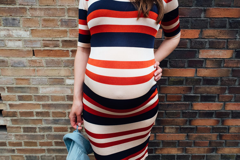 Fashion | Outfit | #Bumpstyle | Streifenkleid | modström | ivy.li